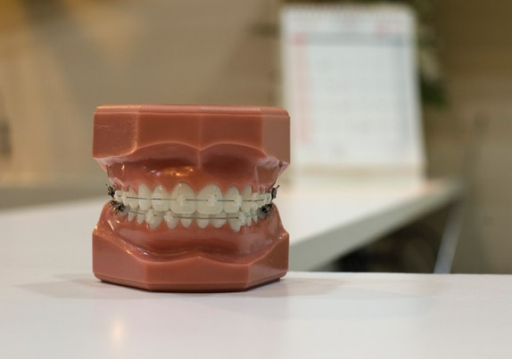 Model of teeth and gums